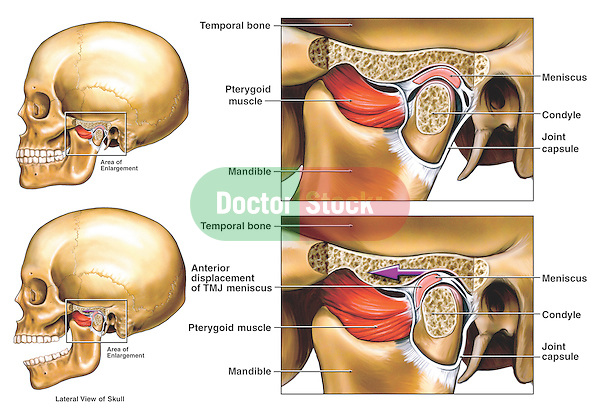 This medical exhibit depicts the anterior displacement of the temporomandibular joint, or TMJ, from the LEFT side. Two illustrations of a lateral (side) view of the skull show the mandible (jaw) open and closed, revealing the displacement of the TMJ meniscus. To the immediate right are two enlarged cut-away sections of the dysfunctional TMJ showing the area in more detail. Labeled structures include the pterygoid muscle, mandible, temporal bone, meniscus, condyle and joint capsule...What is the Temporomandibular Joint (TMJ)?..The temporomandibular joint (TMJ) connects the lower jaw, called the mandible, to the temporal bone at the side of the head. If you place your fingers just in front of your ears and open your mouth, you can feel the joint on each side of your head. Because these joints are flexible, the jaw can move smoothly up and down and side to side, enabling us to talk, chew and yawn. Muscles attached to and surrounding the jaw joint control its position and movement. ..When we open our mouths, the rounded ends of the lower jaw, called condyles, glide along the joint socket of the temporal bone. The condyles slide back to their original position when we close our mouths. To keep this motion smooth, a soft disc lies between the condyle and the temporal bone. This disc absorbs shocks to the TMJ from chewing and other movements. ..Today, researchers generally agree that temporomandibular disorders (TMDs) fall into three main categories: ..ï myofascial pain, the most common form of TMD, which is discomfort or pain in the muscles that control jaw function and the neck and shoulder muscles; ..ï internal derangement of the joint, meaning a dislocated jaw or displaced disc, or injury to the condyle; ..ï degenerative joint disease, such as osteoarthritis or rheumatoid arthritis in the jaw joint. ..A person may have one or more of these conditions at the same time. ..Causes of TMD..Severe injury to the jaw or temporomandibular joint can cause TMD. A heavy blow