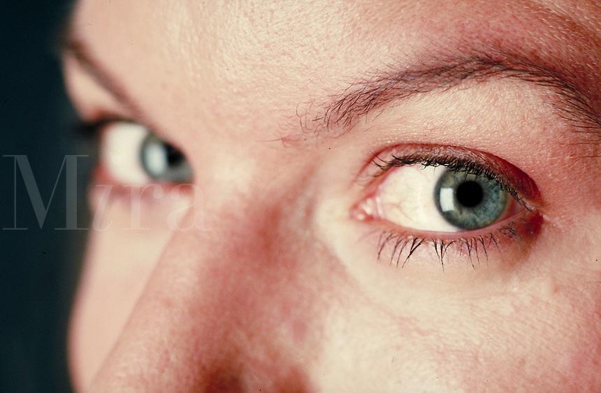 Woman's eyes, close-up. Woman. Douglaston NY.