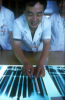 Dr Zhang Yi Qing of a Guangzhou hospital shows x-rays of a previous operation showing the increase in leg length. He indicated with his ruler where the leg has been stretched and where the bone will re-generate...PHOTO BY SINOPIX