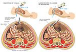 Laparoscopic Surgery to Remove Bowel (Small Intestine) Adhesions.