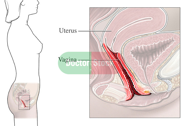 This medical exhibit illustrates the location of the vagina to the uterus.
