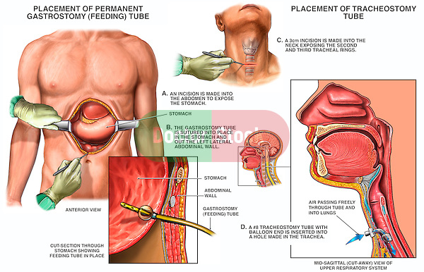Placement of Gastrostomy Feeding Tube and Tracheostomy Tube.