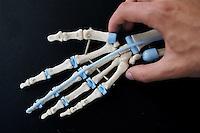 - Orthopaedic Institute Galeazzi, prosthesis of hand ligament<br /> <br /> - Istituto Ortopedico Galeazzi, protesi di legamenti della mano