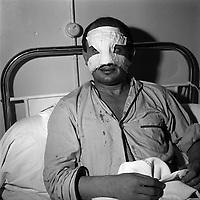 """15 octobre 1961. Pierre Lacaze, surnommé """"Papillon"""", joueur du Toulouse Olympique XIII (rugby à XIII). Plan rapproché du joueur sur son lit d'hôpital (vue de face) ; bandage ou plâtre au niveau du visage (nez cassé)."""