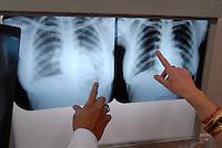 INDIA Madhya Pradesh, mobile health clinic in bus with lab and x-ray machine for free health care in villages / INDIEN Madhya Pradesh , mobile Gesundheitsstation mit Labor und Roentgengeraet in einem Bus fuer kostenlose Versorgung in Doerfern, finanziert von Coop Schweiz und biore Projekt