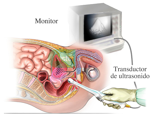 This medical illustration diagramatically shows (with labels in Spanish) a transrectal (rectal) ultrasound test to view the structures of the male urogenital and colorectal system for signs of cancer, including the prostate gland, urinary bladder and colon.