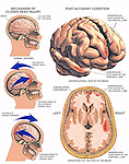 Whiplash - Closed Head Injury with Resulting Brain Injury. Graphic depiction of closed head injury (coup-contra-coup) resulting in brain injury. Shows the following stages: A. Normal brain; B. Head thrust back with brain impacting the skull wall; and C. Head thrust forward with brain impacting the posterior cranial wall. Hemorrhage contusions to the temporal lobes. A final illustration reveals a subarachnoid hemorrhage with frontal and temporal lobe contusions.