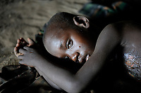 ETHIOPIA, Southern Nations, Lower Omo valley, Kangaten, village Kakuta, Nyangatom tribe, boy with critical skin burns in hut / AETHIOPIEN, Omo Tal, Kangaten, Dorf Kakuta, Nyangatom Hirtenvolk, Junge mit Haut Verbrennungen