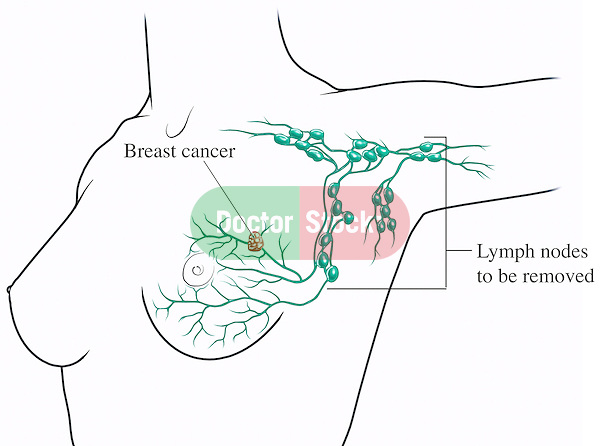 Breast Cancer - Lymphectomy Surgery (Removal of Axillary Lymph Nodes). Accurate diagram depicting location of axillary (armpit) lymph nodes typically removed during radical breast cancer treatment surgery.