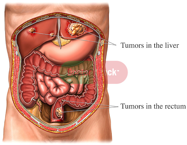 This medical exhibit shows colon cancer with metastasis to the liver from an anterior (front) view. Labels identify the tumors in the rectum (colon) and tumors in the liver. The primary and secondary organs of digestion within the abdomen and pelvis are also displayed, including the stomach, small intestine, large intestine (colon), liver, and appendix.