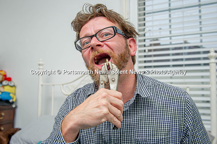 Desperate Chris Savage resorted to yanking two of his own teeth out after being unable to book a dentist appointment.  Chris Savage performed the self-dentistry in his bedroom in Southsea in Portsmouth, Hants because he could not register with a dentist or book an emergency appointment, saying it was the 'most horrible thing I've ever done.' <br /> <br /> The 42 year old said he had been in 'agony' for ... days, saying that just touching the tooth with his rusty pair of pliers set off waves of 'agonising pain.'  The labourer admitted he had to get 'very drunk' by downing eight cans of Stella Artois to mask the pain before he pulled out the first tooth. He then waited another 24 hours to pull the second out - this time sober.  SEE OUR COPY FOR DETAILS.<br /> <br /> © Portsmouth News/Solent News & Photo Agency<br /> UK +44 (0) 2380 458800
