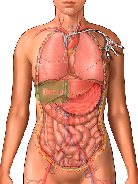 This full color medical illustration depicts the placement of a Schwann-Ganz Catheter into a subclavian vein of a woman.  The catheter extends down through the superior vena cava and into the heart, and is used to measure hemodynamics during open heart surgery, particular pulmonary capillary pressure (PCP). The thoracic organs, abdominal organs and major blood vessels are also visible in this drawing.