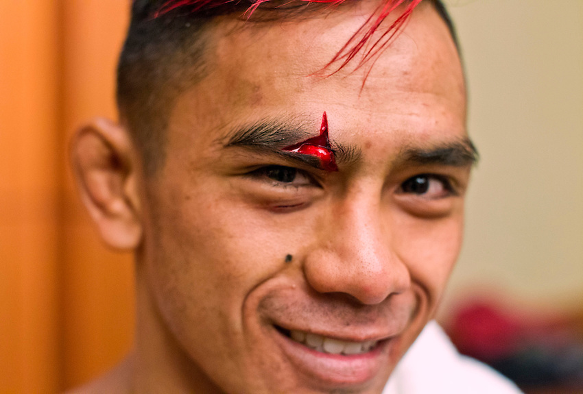 """ATLANTIC CITY, NJ - (Aug. 17, 2013) - Mixed martial arts flyweight Andrew Aguilar, 23, smiles after medical personnel were able to stop the bleeding from a huge cut on his head that forced referee Gasper Oliver to stop his fight against Peter Cole in the first round during a MMA card at Brogata Hotel and Casino in Atlantic City. When showed this photo by a news photographer, Aguilar said: """"Good stop. Good stop."""""""