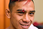 "ATLANTIC CITY, NJ - (Aug. 17, 2013) - Mixed martial arts flyweight Andrew Aguilar, 23, smiles after medical personnel were able to stop the bleeding from a huge cut on his head that forced referee Gasper Oliver to stop his fight against Peter Cole in the first round during a MMA card at Brogata Hotel and Casino in Atlantic City. When showed this photo by a news photographer, Aguilar said: ""Good stop. Good stop."""