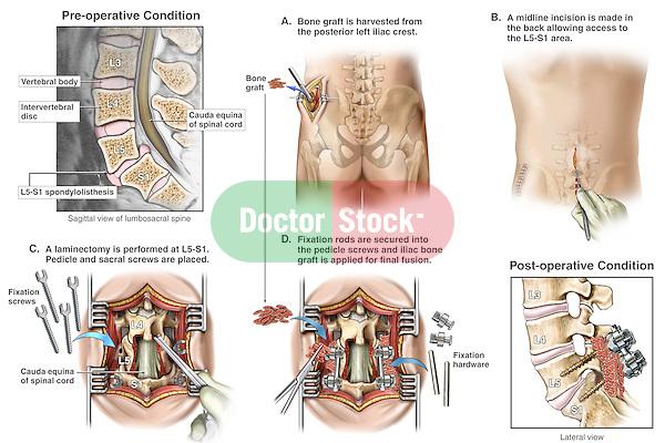 Back Surgery - L5-S1 Spondylolisthesis with Spinal Fusion