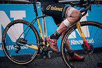 the bruised knee of VAN LOY Ellen (BEL/Telenet Fidea Lions) post-race<br /> <br /> Brussels Universities Cyclocross (BEL) 2019<br /> Women's Race<br /> DVV Trofee<br /> ©kramon