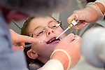 PLYMOUTH, CT 06 December 2008-010609SV03--Dentist Hugh Hunsinger and Hygenist Magdalena Bak work on James Cormier, 7, at Plymouth Center School in Plymouth Tuesday. The dentist and two hygienists were visiting Plymouth Center School to clean and examine the teeth of students.  Steven Valenti Republican-American