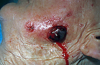 Angiosarcoma face. This is a rare, maglignant tumour consisting of endothelial and fibrolastic tissue that proliferates and eventually surronds vascular channels. The condition usually occurs in older persons. This image may only be used to portray the subject in a positive manner..©shoutpictures.com..john@shoutpictures.com