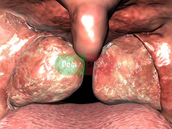Tonsillitis; this 3d medical image features a detailed view of the tonsils as seen in situ with in the oral cavity. the tonsils are enlarged and inflamed indicating infection.
