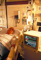 Male patient receives oxygen, intravenous fluids and computer heart monitoring in room. Heart patient.