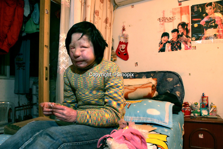 11 year old Liu Fangyuan (Yuan Yuan) sits on her bed in the bedroom that she shares with her parents in Nanjing, China. In 2002, Yuan Yuan's aunt poured sulfuric acid on her face after losing a housing dispute with Yuan Yuan's father. The attack blinded and seriously disfigured Yuan Yuan, while her aunt is serving a life sentence in prison, Yuan Yuan and her family awaits a controversial face transplant...PHOTO BY SHEN / SINOPIX