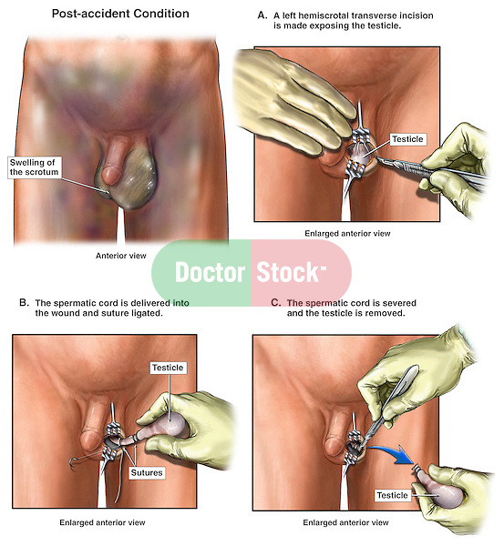 Testicle Removal Surgery - Traumatic Scrotal Injury with Left Orchiectomy Procedure. This full color stock medical exhibit illustrates the traumatic injury to the left scrotum with surgical removal of the left testicle. The exhibit begins by showing the traumatic scrotal swelling, followed by the exposure of the left testicle, suture ligation of the spermatic cord and removal of the testicle.