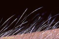 SN33-004z  Hair covering human skin