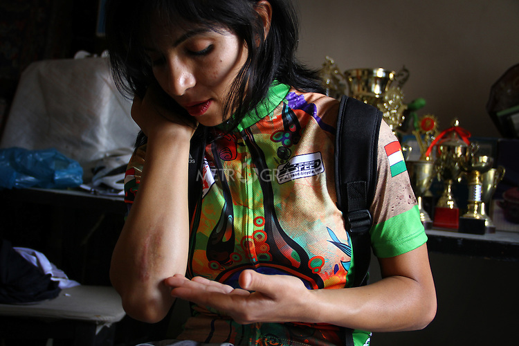 SULAIMANIYAH, IRAQ: Professional cyclist Nyan Yassin shows a scar from a fall she had while training in India in February 2013<br /> <br /> Nyan Yassin, 24, is a professional competitive cyclist in Sulaimaniyah in the semi-autonomous region of Iraqi Kurdistan.  She is the captain of an all-female club called Newroz Club, which is the only cycling club for women in Sulaimaniyah, although there are other clubs around Iraq.  She trains and competes on roads that are badly surfaced and busy with traffic.<br /> <br /> Nyan was the first woman to start cycling in Sulaimaniyah.  She was always competitive and after trying her hand at different sports she settled on cycling.  She is now the top female cyclist in Iraq.  Her nickname is MigMig after the noise made by the cartoon character Roadrunner.<br /> <br /> Despite being clearly talented at her sport Nyan knows that in a couple of years she will have to get married and then abandon it as, in the traditional society that Kurdistan is, being a wife and a competitive sportswoman at the same time is not an option.<br /> <br /> Photo by Gona Hassan/Metrography