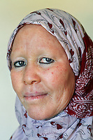 Madame Al-Shaymaa J. Kwegyir is Tanzania's first albino Member of Parliament. She is one of the founders of the Tanzania Albino Society (TAS) and worked as an information officer at the International Airport of Dar-es-Salaam for 25 years. In 2007, after twenty albinos were murdered in Tanzania, President Jakaya Kikwete appointed her as a Member of Parliament. The nomination of an albino MP is a first step in the fight against the widespread belief that albinism is the result of a curse. Discrimination against albinos is a serious problem throughout sub-Saharan Africa, but recently in Tanzania albinos have been killed and mutilated, victims of a growing criminal trade in albino body parts fuelled by superstition and greed. Limbs, skin, hair, genitals and blood are believed by witch doctors to bring good luck, and are sold to clients for large sums of money, carrying with them the promise of instant wealth.