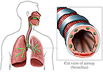 This medical exhibit pictures the airways to the lungs, including the trachea and bronchi, from an anterior (front) view using two separate illustrations.