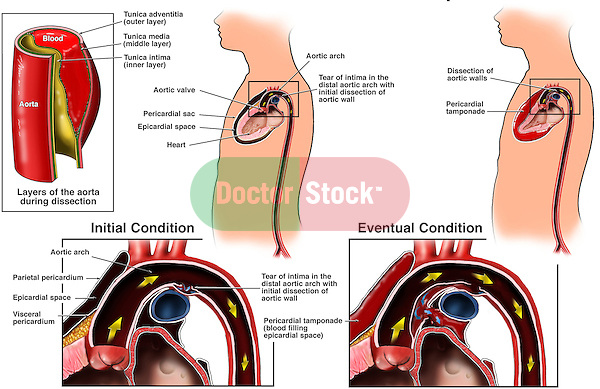 This medical exhibit depicts thoracic aortic dissection with pericardial tamponade in a series of illustrations.  Labeled blood vessel layers include the tunica adventitia (outer layer), tunica media (middle layer) and tunica intima (inner layer). Shows the intimal layer tear progressing from a balloon-like structure in the aortic arch to a rupture of the proximal aorta with bleeding into the pericardial cavity. This condition, pericardial (cardiac) tamponade, is life-threatening and greatly reduces the heart's ability to function.