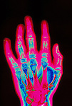 colorized x-ray of arthritic hand