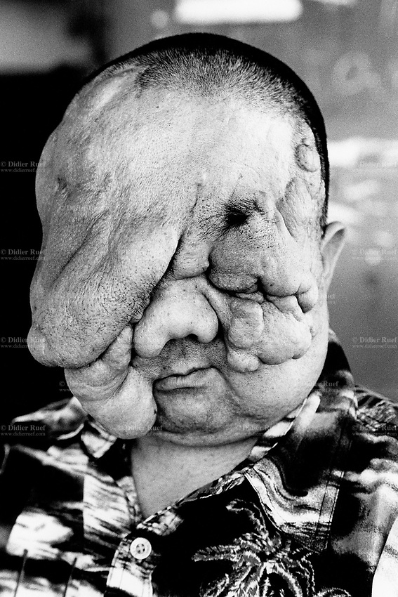 Kazakhstan. Semipalatinsk. Berik Syzdykov suffers from a face cancer. He was born in 1979 in the village of Znamenka, near the Semipalatinsk Polygon ( called today National Nuclear Center of Kazakhstan). Berik Syzdykov is a second (or third) generation victim of the 456 atomic testing - 116 atmospheric, 340 underground - from 1949 to 1989. The regions high frequency of cancers is primarily due to fallout from nearby nuclear test sites. Berik Syzdykov's face shows the human and environmental effects of nuclear radiation, contamination and pollution from atomic tests programs of the former Soviet Union. Semey is the Kazakh name for Semipalatinsk and is located in the Eastern Kazakhstan Province. © 2008 Didier Ruef