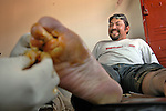The office of Grupo Beta Nogales, Mexico's Search and Rescue organization takes care of thousands of would-be immigrants, from the deported, to the injured, to the desperate and the hungry. A man has his blisters cleaned up at one of the offices of Grupo Beta in Nogales, Sonora, after walking all night though the desert of Arizona. The man, along with a group of 35 other border-crossers, got spotted by the Border Patrol and deported to Mexico a few days later. .Nogales, Sonora-Mexico. 02/13/05                           .