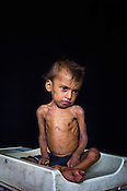 12 month old Sangeeta Radha, an extremely malnourished girl child poses for a picture at the Nutrition Rehabilitation Centre (NRC) in Burhanpur district of Madhya Pradesh, India. Sangeeta was admitted to the NRC on Sept 17, 2012 and weighed 3.910Kg. Photo: Sanjit Das/Panos for ACF