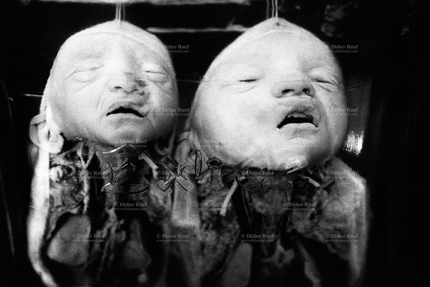 Kazakhstan. Semipalatinsk. Semey State Medical Academy. Dead foetus. Congenital anomalies of the development of the central nervous system due to atom testing. The dead children were conceived near the Semipalatinsk Polygon ( called today National Nuclear Center of Kazakhstan) and are victims of the 456 atomic testing - 116 atmospheric, 340 underground - from 1949 to 1989. The regions high frequency of congenital anomalies is primarily due to fallout from nearby nuclear test sites. Both children's death are the human and environmental effects of nuclear radiation, genetic contamination and pollution from atomic tests programs of the former Soviet Union. Semey is the Kazakh name for Semipalatinsk and is located in the Eastern Kazakhstan Province. © 2008 Didier Ruef .