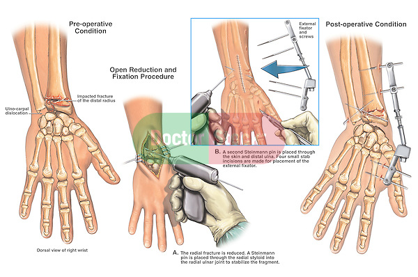 This medical exhibit depicts open reduction with internal and external fixation of right wrist fractures. The illustration consists of four images. The first image shows a fracture of the distal radius with ulno-carpal dislocation. The second image shows open reduction with placement of a Steinmann pin. The third image shows placement of another Steinmann pin and external fixator. The final image shows the post-operative condition.