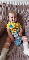 Pictured: Harri Clarkson with his two feet bandaged up<br /> Re: A boy-of-two was badly burned after walking onto a discarded beach barbecue buried in the sand.<br /> Harri (CORR) Clarkson screamed in agony when he stepped onto the hot coals.<br /> Mum Laura Ashford, 33, picked him up and saw smoke coming from the soles of his feet.<br /> Little Harri needed hospital treatment for serious burns to his right foot and blistering to his left.<br /> Police and coastguards want information about the careless barbecue revellers at Caswell Bay, near Swansea.