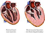 Heart - Enlarged Cardiomegaly