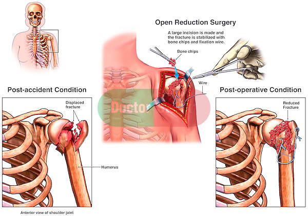 Shoulder Fractures with Fixation Surgery. Depicts displaced, fractured humerus (broken arm bone) with surgical repair and fixation.