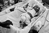 Port Au Prince, Haiti, Jan 27 2010.Landina Seignon, 1 & 1/2 month, lost her right arm in the disaster. MSF France has set up a 180 beds field hospital in Delmas 33, featuring two surgical units, it will operate for a year..