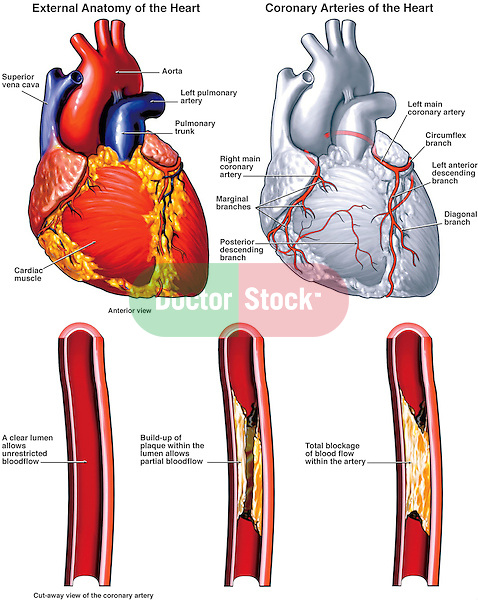 Dramatically depicts the heart and coronary arteries with potential plaque blockage sites.  Labels for superior vena cava, aorta, left pulmonary artery, pulmonary trunk, right coronary artery,  left main coronary artery, circumflex branch, left anterior descending branch and others. Details: A. Normal artery with a clear lumen and bloodflow; B. Initial build-up of plaque within the lumen allowing only partial bloodflow; C. Final condition with totally blocked artery.