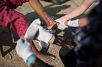 Nikita, 14, a victim of Nepal earthquake receive treatment from a volunteer medical team at Balapati, outside of Kathmandu, Nepal . May 05, 2015