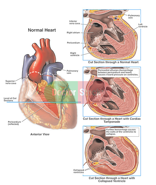 Accurately depicts the process of cardiac tamponade (hemorrhage within the pericardium) with subsequent ventricular collapse. Shows normal heart and the pericardial sac (pericardium). Progression of tamponade: 1. Normal heart, ventricles, pericardial space and pericardial sac; 2. Initial condition with blood hemorrhaging between the heart wall and the pericardial sac; 3. Ultimate condition with the collapse of the ventricles and the blood stopping the heart from beating