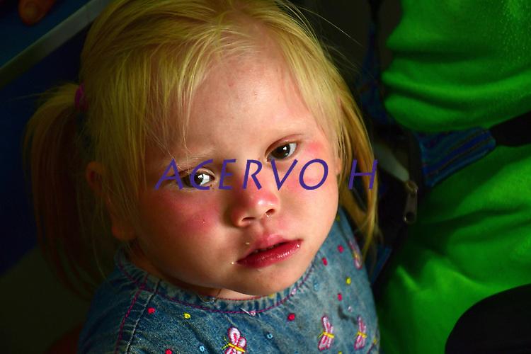 """CrianÁas Kaxinawa, de Santa Rosa do Purus.<br /> <br /> Irm""""os albinos indÌgenas que estavam sem atendimento numa das regiıes mais remotas do paÌs ó a aldeia Nova MudanÁa, no Rio Purus, no municÌpio de Santa Rosa do Purus, fronteira do Brasil com o Peru. Retornam de S""""o Paulo, apÛs atendimento pelo Programa PrÛ Albino, desenvolvido h· seis anos na Santa Casa de MisericÛrdia de S""""o Paulo. <br /> O programa inÈdito no paÌs, oferece atendimento mÈdico e psicolÛgico gratuito a portadores de albinismo e ensina a lidar com o preconceito social.<br /> †©Altino Machado"""