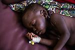 CAR,Bangui:A child is sleeping while being treated for high fever and diareea in the MSF clinic of Mpoko camp. 21th April 2016.<br /> <br /> RCA, Bangui: un enfant dort et est traité pour fièvre et diarhée dans la clinique MSF de Mpoko. 21 avril 2016.