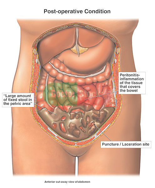 Iatrogenic Bowel Puncture and Laceration During Laparoscopic Surgery.