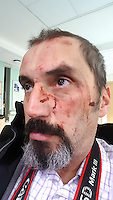 Pictured: Self portrait of photographer Dimitris Legakis showing his bloodied face after being assaulted by man who smashed window of parked car in the early hours of Saturday, 17 December, 2016<br /> Re: Mad or Black Friday in Middlesbrough, England, UK