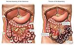 Mesenteric Torsion with Widespread Bowel Necrosis