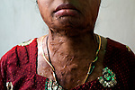 Rinki Saha, 22, a victim of domestic violence in Kolkata, India. Her husband set her on fire as her parents failed to meet his repeated demands for dowry. Crimes against women have been going on since centuries. In India, women have been categorically marginalized with various types of repressions enforced upon them. Be it home or outside, an Indian woman is potentially at the risk of being discriminated against, molested, raped and even killed. Until recently, turning a blind eye to such crimes has been the norm in largely gender-biased Indian society. But after the brutal gang rape and subsequent death of the Delhi Physiotherapy student, the so-far-silent middle class has turned vocal.